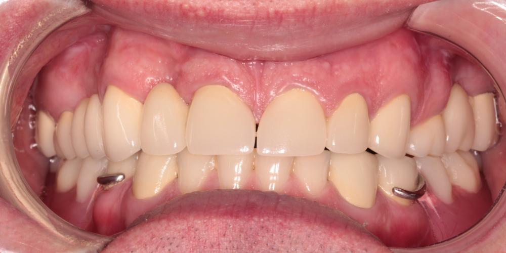 Тотальная реабилитация зубных рядов, фото до и после