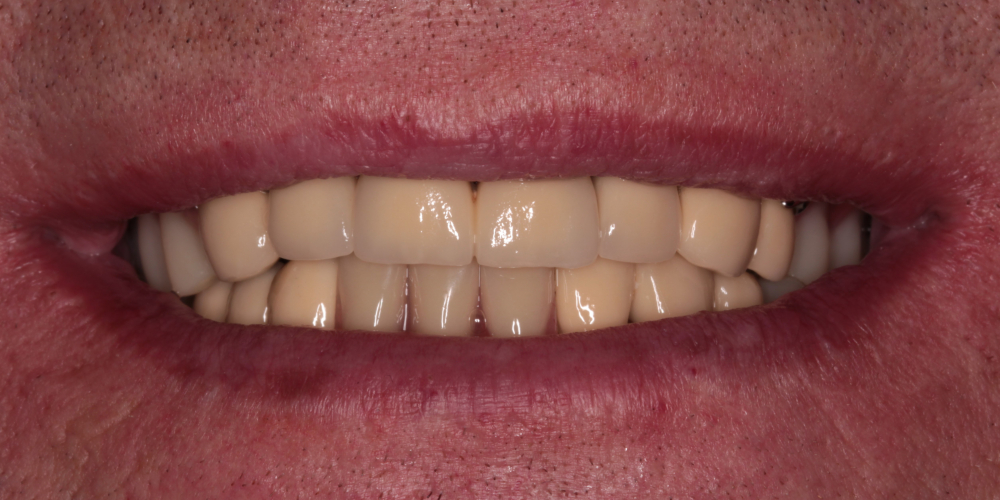 Тотальная реабилитация зубных рядов металлокерамическими коронками + бюгельные протезы