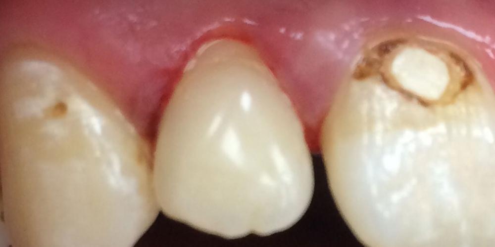 Фото после лечения. Результат лечения глубокого кариеса переднего зуба