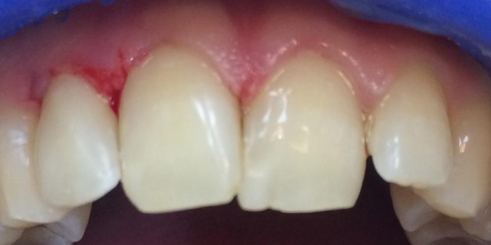 Фото после лечения. Лечение среднего кариеса на передних зубах + реставрация