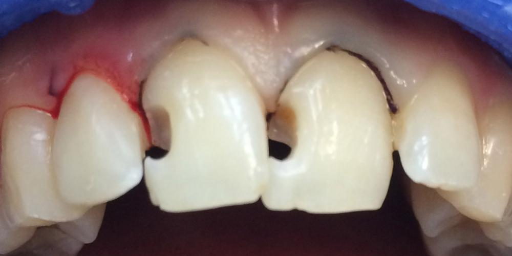 Фото после препарирования. Лечение среднего кариеса на передних зубах + реставрация