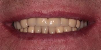 Тотальная реабилитация зубных рядов металлокерамическими коронками + бюгельные протезы фото после лечения