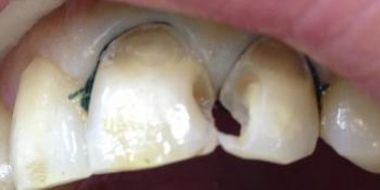 Лечение кариеса переднего зуба фото до лечения