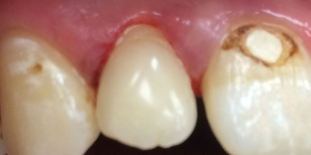 Результат лечения глубокого кариеса переднего зуба фото после лечения