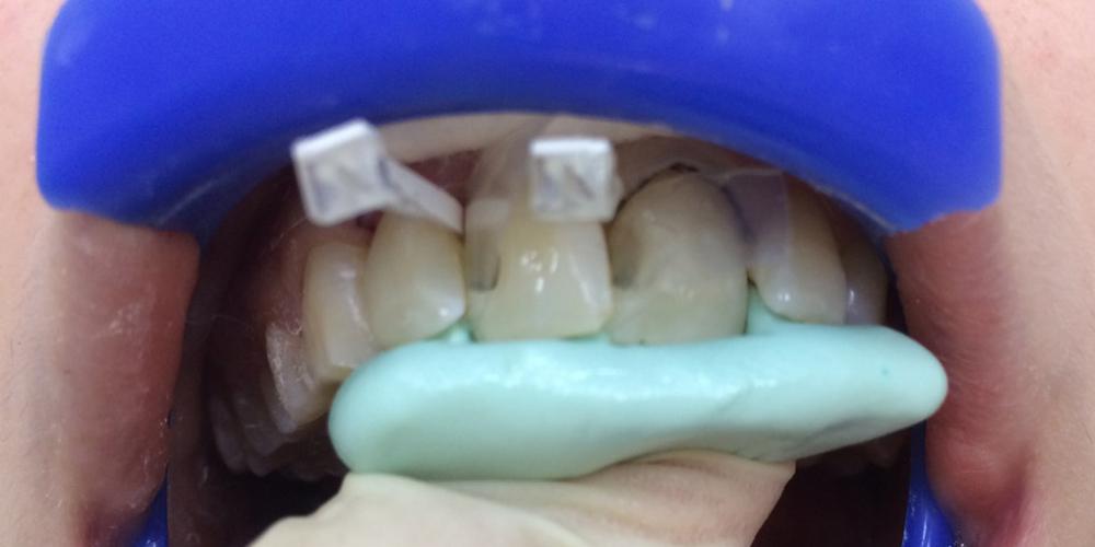 Процесс. Лечение среднего кариеса на передних зубах + реставрация