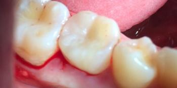 Результат лечения глубокого кариеса фото после лечения