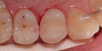 Лечение глубокого кариеса зуба 1.4 (верхний первый премоляр справа) фото после лечения