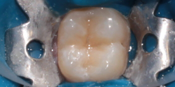 Лечение глубокого кариеса жевательного зуба 3.6 фото после лечения