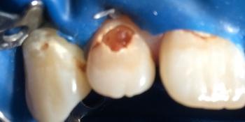 Результат лечения глубокого кариеса переднего зуба фото до лечения