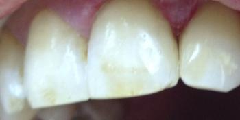 Лечение кариеса переднего зуба фото после лечения
